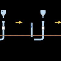 方法 cvp 測定